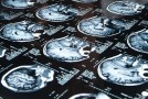 Funkcjonalne mapowanie mózgu z wykorzystaniem rezonansu magnetycznego (MR) – rola diagnostyki obrazowej w planowaniu zabiegów neurochirurgicznych / Functional brain mapping using the Magnetic Resonance Imaging (MRI) – the role of diagnostic imaging in the planning of neurosurgical procedures