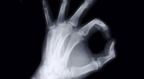 Retrospektywna analiza  anodowego efektu osłabienia wiązki promieniowania rentgenowskiego  na radiogramach porównawczych rąk