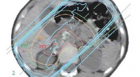 Wytyczne wykonywania radioterapii u dzieci – doniesienie wstępne