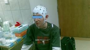 Kliniczne zastosowania techniki EEG-fMRI; Clinical application of EEG-fMRI technique