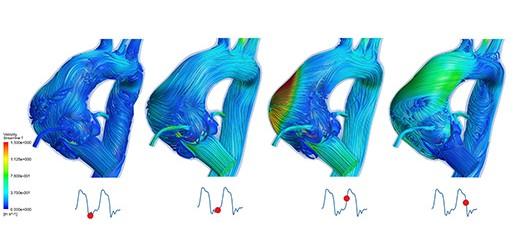 Modelowanie serca