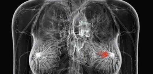 Pomiar średniej dawki gruczołowej w mammografii