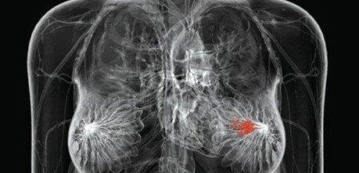 Mammografia – refleksje technika elektroradiologii