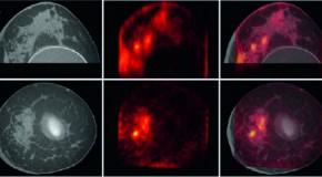 Medycyna nuklearna w diagnostyce raka piersi
