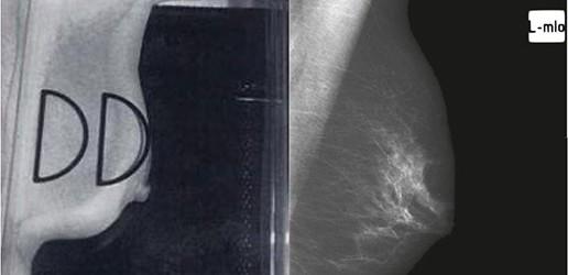 Audyt kliniczny badań mammograficznych