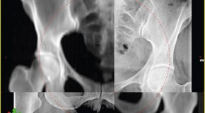 Trudności w przeprowadzeniu radioterapii u chorych z otyłością/Practical issues in radiotherapy of obese patients