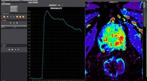 Nowoczesne rozwiązania software'owe w diagnostyce nowotworów