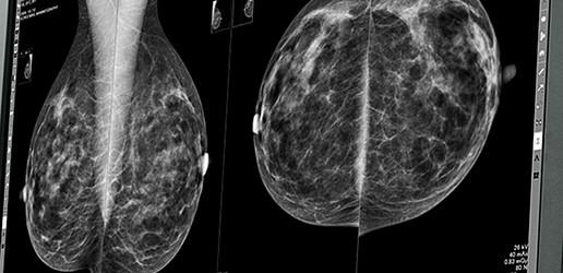 Mammografia – nowe wyzwania