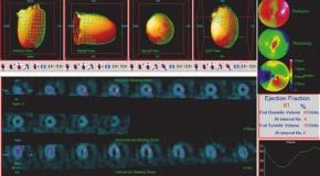 Osiągnięcia współczesnej medycyny nuklearnej