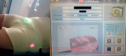 Wirtualna symulacja – nowy element procesu planowania radioterapii