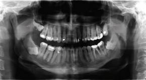 Podstawy badań stomatologicznych: zdjęcia zewnątrzustne – pantomografia