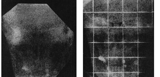 Gustav Peter Bucky (1880-1963)  – wynalazca i pionier w dziedzinie radiologii oraz radioterapii