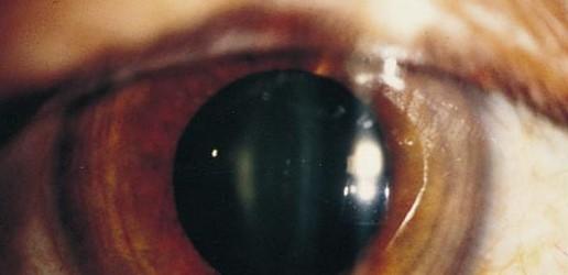 Narażenie zawodowe  na całe ciało, dłonie i soczewki oka  w radiologii interwencyjnej w Polsce