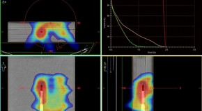 Dozymetryczna weryfikacja  dynamicznych planów leczenia VMAT