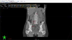 Wpływ rotacji miednicy  na planowanie i realizację  radioterapii u pacjentek leczonych  z powodu nowotworu szyjki macicy