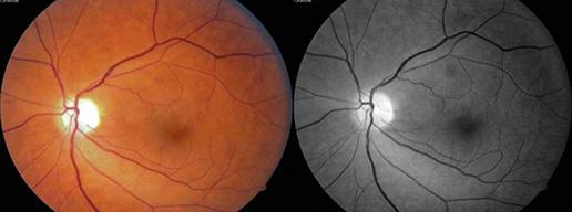 Rola elektroradiologa  w diagnostyce chorób oczu