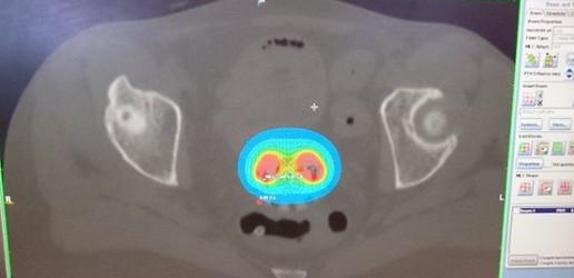 Technika planowania boostu EBRT  w leczeniu miejscowo  zaawansowanego nowotworu szyjki macicy
