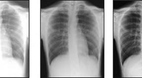 Poprawa jakości obrazu zdjęć rentgenowskich  oraz usprawnienie pracy technika  przy użyciu technologii Wirtualnej kratki  – nowej metody przetwarzania zdjęć rentgenowskich