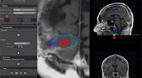 Nowe możliwości w diagnostyce badań z wykorzystaniem  rezonansu magnetycznego