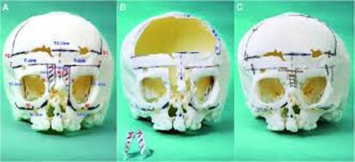 Zastosowanie technologii przyrostowych w medycynie rekonstrukcyjnej  twarzoczaszki