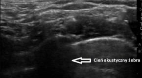 Artefakty w ultrasonografii