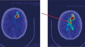 Mikrodozymetria w leczeniu guzów mózgu