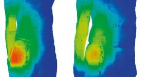 Badania modelowe dotyczące skutków termicznych oddziaływania promieniowania elektromagnetycznego radiotelefonów