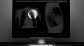 Coronis Uniti – monitor diagnostyczny nowej generacji