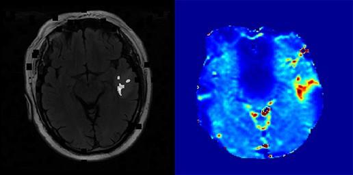 Metoda BOLD w diagnostyce i kontroli leczenia nowotworów mózgu