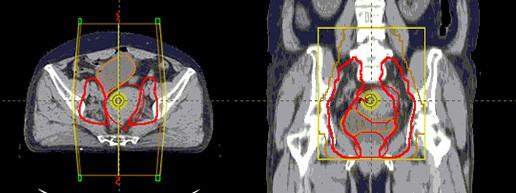 Techniki napromieniania w radioterapii – boost