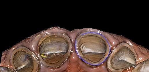 Zastosowanie technologii CAD/CAM w stomatologii odtwórczej – przegląd piśmiennictwa