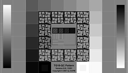 Norma międzynarodowa PN-EN 62563-1. Medyczne urządzenia elektryczne – systemy wyświetlania obrazu medycznego. Część 1: Metody oceny – ocena jakościowa