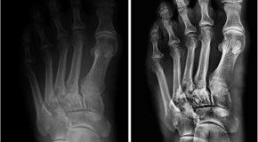 Mniejszy może więcej. Diagnostyka rentgenowska w nowym wymiarze – próby kliniczne detektora Xrpad