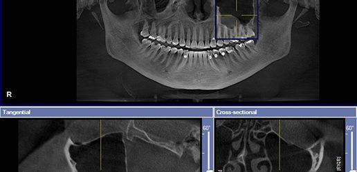 Zastosowanie termografii w diagnostyce przewlekłych zębopochodnych procesów zapalnych – opis przypadku
