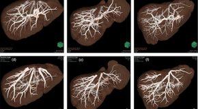 Zaawansowana analiza wątroby w aplikacji Synapse 3D – Fujifilm