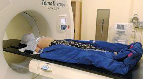 Ruchomość wewnątrz i zewnątrznarządowa – indywidualizacja podejścia do radioterapii na podstawie doświadczeń własnych i przeglądu literatury