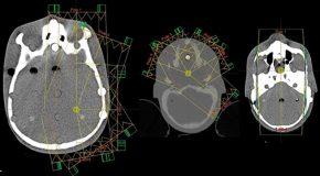 Weryfikacja obrazu zrekonstruowanego przy pomocy algorytmu iMAR w obszarze głowy i szyi