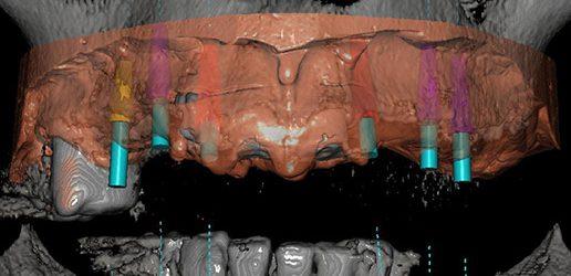 Zastosowanie szablonów chirurgicznych projektowanych na podstawie tomografii komputerowej w zabiegach implantologicznych – charakterystyka systemu DDS-pro®