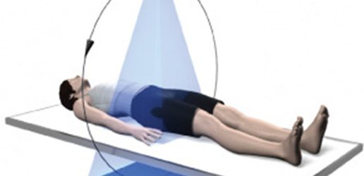 Zalety obrazowania metodą wolumetrycznej tomografii stożkowej w badaniach ortopedycznych kończyn