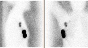Ocena przydatności akwizycji w projekcji bocznej w scyntygraficznej detekcji węzła wartownika w badaniu SNOLL u pacjentek z rakiem piersi – opracowanie na podstawie materiału klinicznego