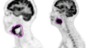 Metody oceny parametrów biologicznych guza w oparciu o obrazy 18F-FDG-PET/CT w diagnostyce onkologicznej