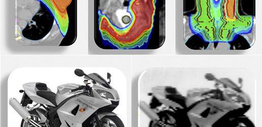 Unikalne możliwości helikalnego systemu radioterapii
