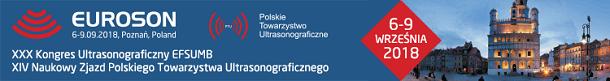 baner_euroson2018_750x100_610
