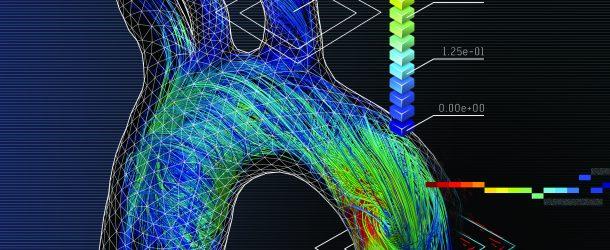 Zobaczmy to, co niewidoczne, czyli wirtualna symulacja krążenia wieńcowego