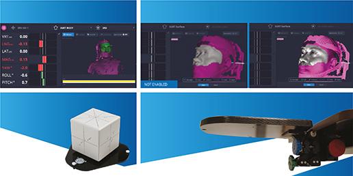Technologia SGRT – nowy standard nowoczesnej i bezpiecznej radioterapii